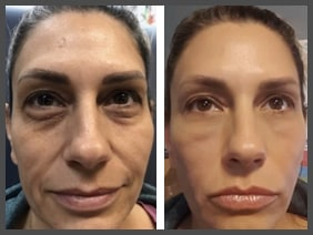 Vampire Facelift What Is A Vampire Facial Houston Tx